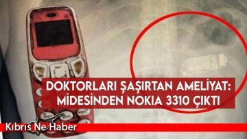 Doktorları şaşırtan ameliyat: Midesinden Nokia 3310 çıktı
